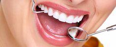 Blanqueamiento dental - dientes blancos