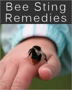 15 Bee Sting Home Remedies & Tips. Just in case cause I'm terrified of these bugs! Natural Home Remedies, Natural Healing, Herbal Remedies, Health Remedies, Home Health, Health And Wellness, Health Fitness, Remedies For Bee Stings, Do It Yourself Baby