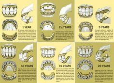36 Best Horse Teeth Images Teeth Dental Tooth