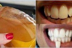 Dite addio ai denti gialli con questa meravigliosa ricetta fatta in casa! Funziona così bene che vi farà vivere sempre sorridente!