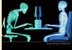 Poor posture can lead to excessive strain to your postural muscles. Posture Fix, Better Posture, Bad Posture, Sitting Posture, Improve Posture, Chiropractic Humor, Family Chiropractic, Pilates, Alexander Technique