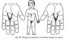 su-jok-44-terapia-de-semillas-enuresis