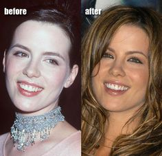 Kate Beckinsale has always been beautiful, and the addition of her nose job, tooth veneers, and gum reduction has done wonders for her look