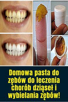Pasta do zebow Health And Beauty, Life Hacks, Beauty Hacks, Halloween Face Makeup, Health Fitness, Asia, Beauty Tricks, Fitness, Lifehacks