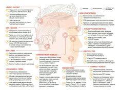 Что означает боль в затылке и висках. Карта головной боли. Врачи также рассказали, когда от мигрени помогает массаж и какие таблетки лучше выбрать | Инфографика | Вести
