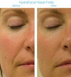 81 Best HydraFacial images in 2019 | Hydra facial, Skin Care, Facial