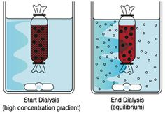 Fundamental of Dialysis