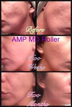 Using AMP MD roller and Redefine night serum made such a difference in her skin!