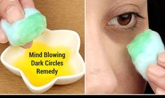 Home Remedies For Dark Circles Under The Eyes!