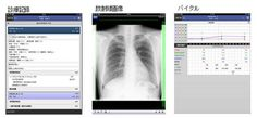 富士通、モバイル端末で電子カルテを院外から閲覧できる製品発売