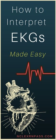 EKG interpretation made easy. If you are a nursing student looking for help with learning and understanding 12 lead ekgs and cardiac rhythms this article is for you! Cardiology is no joke in nursing school so sometimes you have to bring complicated concepts back to the basics. Simple steps to understand EKGs #ekginterpretation #nclex #nursingstudents #nursingschool