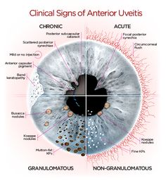 Clinical Signs of Anterior Uveitis Opthalmic Technician, Optometry School, Eye Anatomy, Heart Anatomy, Medicine Notes, Eye Facts, Medical Anatomy, Healthy Eyes, Eyes Problems