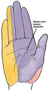 The most researched and well-defined upper extremity nerve-entrapment problem is carpal tunnel syndrome (CTS). CTS involves compression of the median nerve at the base of the hand in a region called the carpal tunnel. Median Nerve, Carpal Tunnel Syndrome, Anatomy, Massage, Study, Image, Studio, Studying, Research