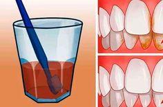 blanqueo sus dientes 1