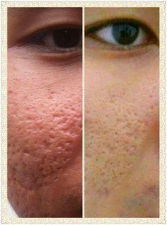 Smaller pores & Whiter skin.  Action 1: Protect your skin cells from the harmful UV rays from your environment. Action 2: Inhibit Tyrosinase from producing more melanin which is known for darkening skins. Action 3: Inhibit activity of collagenase and elastase, which break down elastin upon exposure to the sun, pollution, stress, etc Action 4: Speed up and encourage the production of new collagen and elastin in your skins. Action 5: Immediate replenish lost collagen and elastin in your skins.