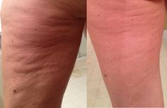 Before and After Photo #cellulite #dermaroller #cellulitetreatment