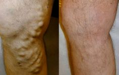 Natural Remedies for Varicose Veins - Everyday Remedy Varicose Vein Remedy, Varicose Veins Treatment, Home Remedies, Natural Remedies, Medical Care, Natural Health, Beauty Hacks, Health Fitness, Beauty Tips