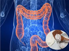 Watch This Video Daunting Home Remedies for Natural Colon Cleansing Ideas. Inconceivable Home Remedies for Natural Colon Cleansing Ideas. Herbal Colon Cleanse, Colon Detox, Colon Health, Liver Cleanse, Natural Body Cleanse, Constipation Remedies, Detoxify Your Body, Acide Aminé, Colon Cancer