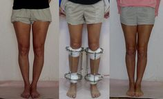 We at The International Centre of Anthropometrical Cosmetology and Correction perform safe and trustworthy Cosmetic Height Increase surgeries to increase length of limb and legs. Bow Legged Correction, Knee Pain Exercises, Cosmetology, Surgery, Centre, Thighs, Bows, Cosmetics, Wedding Cards