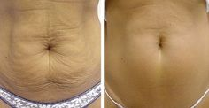 Jak přírodně napnout pokožku břicha, obličeje i jinde na těle