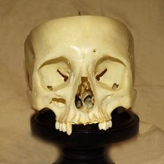 This real human skull has been professionally prepared for medical use and is in excellent condition.  A beautiful specimen for any enthusiast of natural history, biology or any of the sciences.  Does not include skull cap or mandible.  WE CANNOT SHIP THIS ITEM TO THE FOLLOWING STATES: New York, Tennessee and Georgia.  If you have any questions or would like additional pictures please email or call us.FREE SHIPPING on this item only within the US.