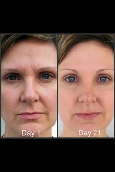 NeriumAD REAL results, REAL people and REAL science!! This picture is just one of a bunch of results! Order yours today http://www.YourNerium.com