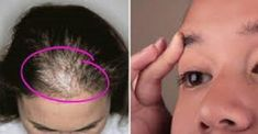 Castor oil is able to regrow hair, eyelashes and eyebrows Beauty Care, Diy Beauty, Beauty Hacks, Beauty Tips, Castor Oil For Hair, How To Grow Eyebrows, Regrow Hair, Tips Belleza, Hair Loss