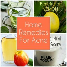 Acne Home Remedies: Try these homemade face packs and follow these essential tips for healthy, glowing and pimple free skin!!! | Exclusive from Deluxspa #essentialoilsmenstrualmigrane