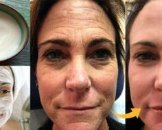 Thousands of Women Are Using This Homemade Cream to Rejuvenate Their Facial Skin and Get Rid of Wrinkles! You Will Look 10 Years Younger Overnight (RECIPE) Lemon Juice Face, Lemon Face, Wrinkle Remedies, Baking Soda And Lemon, Les Rides, Face Skin Care, Turkish Recipes, Tips Belleza, Beauty Recipe