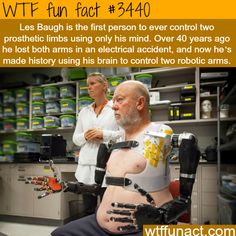 """""""Amputee Makes History with APL's Modular Prosthetic Limb"""" is the headline from Johns Hopkins Applied Physics Laboratory, where a team working on prosthetics observed a milestone when a double amputee showed he can control . Wtf Fun Facts, Funny Facts, Random Facts, Strange Facts, Crazy Facts, What The Fact, Mind Blowing Facts, Robot Arm, Johns Hopkins University"""