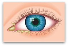 How to Get Rid of Stye? Home Remedies for Stye Treatment Blood Vessel In Eye, Blood Vessels, Eye Stye Remedies, Natural Remedies, Corneal Ulcer, Dry Eye Symptoms, Ulcer Symptoms, Natural Home Remedies, Rosacea