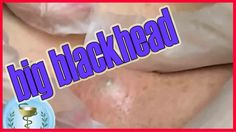 Removal of big blackhead. Big zit popping (how to squeeze Blackhead) - A...