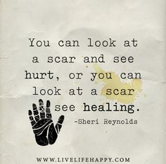You can look at a scar and see hurt, or you can look at a scar and see healing. - Sheri Reynolds