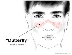 Many Lupus sufferers also have the malar rash also known as a butterfly rash across their face.