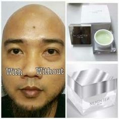 Say Goodbye to your BELOVED eyebags. See results in Minutes. Message me for your orders.  Php 1350 + shipping fee