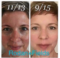 Our SKIN/AGING is 80% CARE and 20% heredity and environment! Is it time for you to start looking your best? Message me!