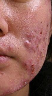 treats, treat acn, face, skin care, beauti diy, health care, cure acn, acn natur