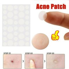 Tag Remover, Blemish Remover, Acne Cream, Skin Tag Removal, Skin Care Tools, Nail Art Tools, Facial Care, Acne Scars, Beauty Essentials