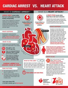 cardiac arrest danger factors, what are the signs and symptoms as well as the most effective all-natural ways to decrease the danger of cardiovascular disease What Is A Heart, Normal Heart, Heart Disease Symptoms, Heart Attack Symptoms, Heart Arteries, Medical Student, Medical School, Heart Muscle, American Heart Association