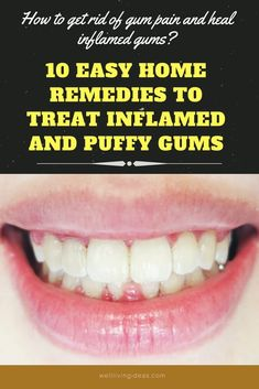 Headache Remedies 10 Best Home Remedies to Reduce Gum Swelling - Find common and efficient home remedies to fix swollen and inflamed gums and get fast relief. Gum Disease Cure, Gum Disease Treatment, Natural Headache Remedies, Natural Home Remedies, Swollen Gums Remedy, Gum Inflammation, Remedies For Tooth Ache