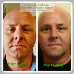 Love the fact that men are jumping on the skincare bandwagon and starting their journey to amazing skin. This is Lisa's husband after 2 months of using REDEFINE with the AMP MD Roller tool added in. AMAZING PRODUCTS + AFFORDABILITY = AMAZING RESULTS Contact me today for more information on this or any of the other products from Rodan + Fields.