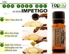 tea tree oil remedy for impetigo