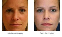 Superior Results for Rhinoplasty Surgery in Houston Rhinoplasty Surgery, Houston, Compliments, Facial, Deep, Facial Treatment, Facial Care, Face Care, Face
