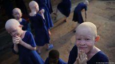 ROXANA REY: Albinos en Tanzania: amenazados y deportados.