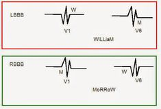 Score 99 USMLE blog: William Morrow in Bundle Branch Block