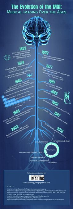 Did you know that there are 30,000,000 MRIs performed in the U.S. alone? Medical imaging is one of the greatest tools that modern science can use to detect diseases. This infographic from Advanced Medical Imaging in Denver shows you more. Original source: http://www.radiologyimagingdenver.com/631182/2013/01/22/the-evolution-of-the-mri--medical-imaging-over-the-years-infographic.html