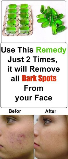 Dark black/brown spots usually appear on our skin because of pimples or accidents and mostly they take lot of time to disappear from your skin but today I will share one natural remedy that is supe… #Treatingskindarkspots