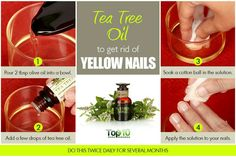 Use Tea Tree Oil to get rid of yellow nail's.