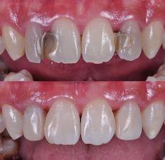 Happy Dental, Smile Dental, Implant Dentistry, Cosmetic Dentistry, Dental Posters, Dental Office Decor, Dental Art, Dental Procedures, Tooth