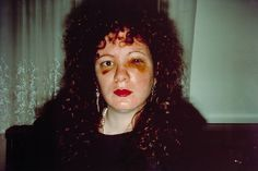 """Nan one month after being battered. 1984. Self-portrait by Nan Goldin.  From the Tate Modern:""""As a photographic print, this image exists in an edition of twenty-five. It marks the end of a long-term relationship and a particular period in the artist's life and provides the emotional climax of Goldin's slide show and book The Ballad of Sexual Dependency. It also appears in Goldin's more recent slide show series of self-portraits titled All By Myself 1995-6. """""""